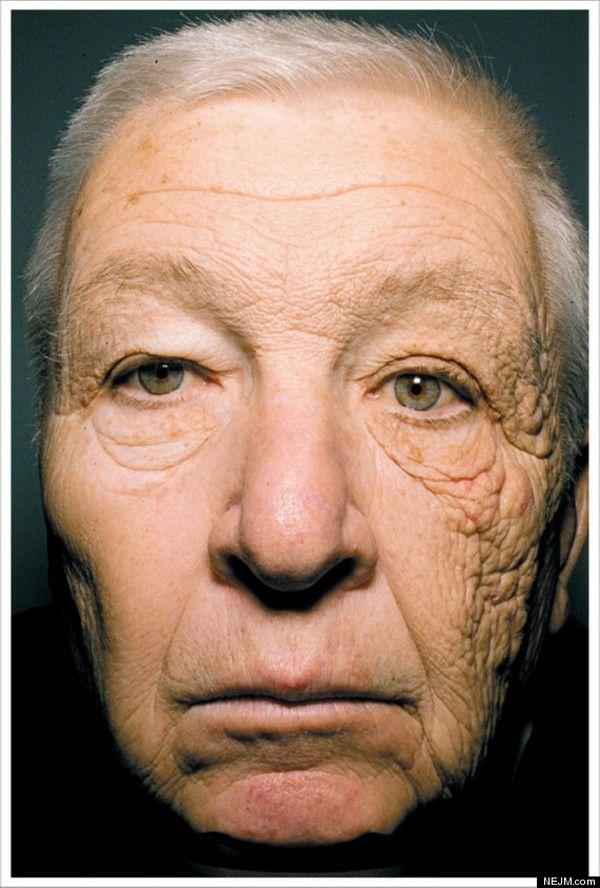 soarele duce la imbatranirea prematura a pielii